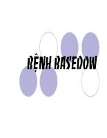 Bệnh Basedow