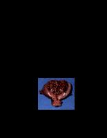 Ung thư niêm mạc tử cung