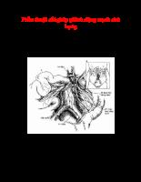 Phẫu thuật cắt ghép phình động mạch chủ bụng