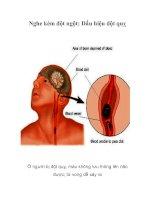 Tài liệu Nghe kém đột ngột: Dấu hiệu đột quỵ doc