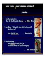 Tài liệu MRI Chấn thương cột sống cổ docx