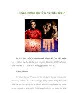 11 bệnh thường gặp về da và cách chữa trị