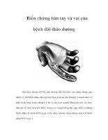 Biến chứng bàn tay và vai của bệnh đái tháo đường