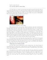 Các virut gây bệnh tay chân miệng