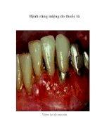 Bệnh răng miệng do thuốc lá , Viêm lợi do nicotin