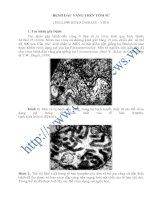 Tài liệu BỆNH ĐẦU VÀNG TRÊN TÔM SÚ (YELLOW HEAD DISEASE - YHD) pptx