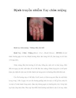 Tài liệu Bệnh truyền nhiễm Tay chân miệng pdf