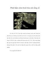 Tài liệu Phát hiện sớm thoái hóa cột sống cổ pptx