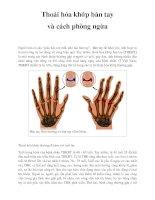 Thoái hóa khớp bàn tay và cách phòng ngừa pptx
