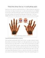 Thoái hóa khớp bàn tay và cách phòng ngừa docx