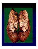 Giải phẫu bênh - Ung thư phổi và ung thư thận part 7 ppsx