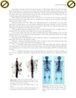 Giáo trình hướng dẫn tìm hiểu về các khối u tuyến nội tiết có vai trò như thế nào trong phản xạ của con người phần 2 pps