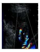 Chẩn đoán bằng hình ảnh : Siêu âm bụng part 8 pdf