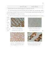 Luận văn : ỨNG DỤNG PHƯƠNG PHÁP IN SITU HYBRIDIZATION ĐỂ CHẨN ĐOÁN MẦM BỆNH WSSV (White Spot Syndrome Virus) TRÊN TÔM SÚ (Penaeus monodon) VÀ TSV (Taura Syndrome Virus) TRÊN TÔM THẺ CHÂN TRẮNG (Penaeus vannamei) part 3 doc
