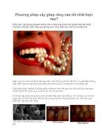 Phương pháp cấy ghép răng nào tốt nhất hiện nay pps