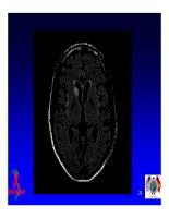 Bài giảng điều trị HIV : Các biểu hiện bệnh lý thần kinh ở người nhiễm HIV part 5 ppsx