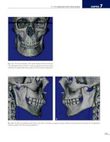 Cephalometry A Color Atlas and Manual - part 8 pdf