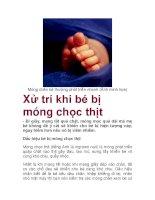 Móng chân bé thường phát triển nhanh (Ảnh minh họa) Xử trí khi bé bị móng pdf