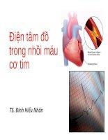 Điện tâm đồ trong nhồi máu cơ tim.PPT