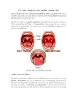Các triệu chứng của viêm amidan và cách xử lý
