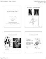 Chụp cắt lớp vi tính hay chụp cắt lớp CT