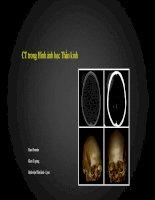 CT trong hình ảnh học thần kinh 1