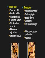 Imagerie des nerfs crâniens part 3
