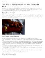 Tìm hiểu về bệnh phong và các triệu chứng của bệnh