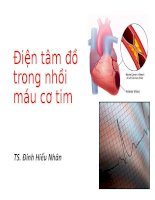 Điện tâm đồ trong nhồi máu cơ tim