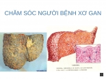 6  chăm sóc người bệnh gan mật ( áp xe gan, xơ gan) (1) ppsx
